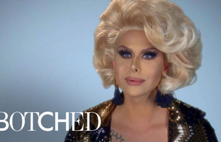 "Trinity The Tuck Fills Up His Lips on ""Botched"" This Wednesday 
