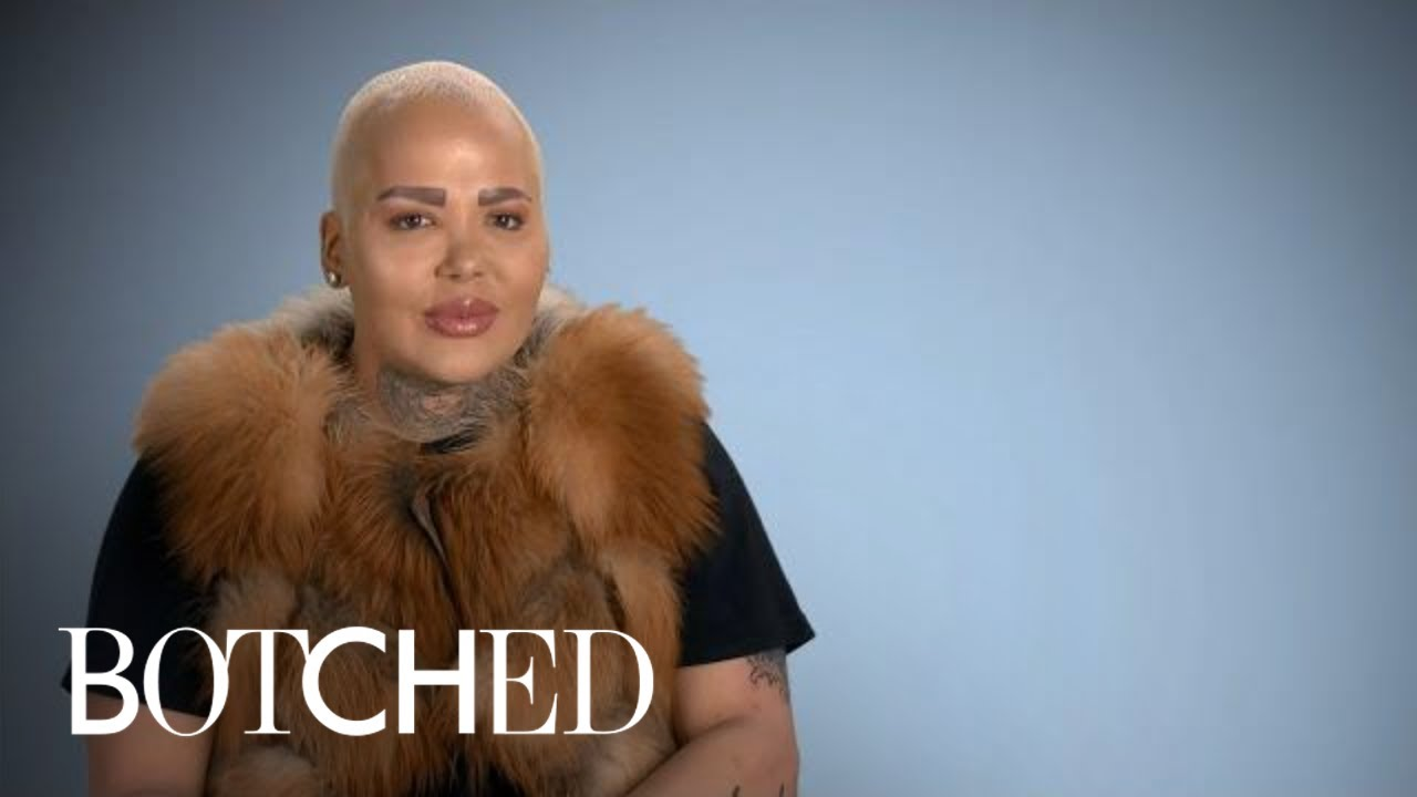 Jordan aka The Lip King Makes His Big Return! | Botched | E! 3