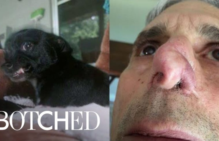 My Name Is Jim, and My Dog Ate My Nose | Botched | E! 1