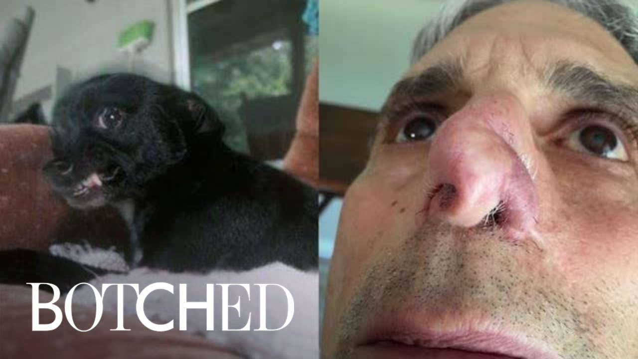 My Name Is Jim, and My Dog Ate My Nose | Botched | E! 5