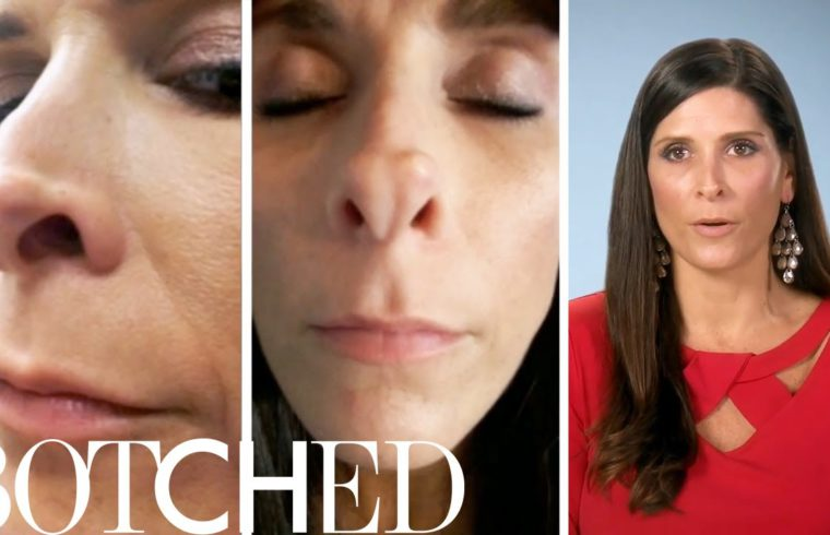 """High School Athlete Wants """"Hot Mess"""" Nose Fixed on """"Botched"""" 