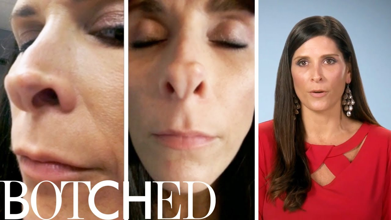"High School Athlete Wants ""Hot Mess"" Nose Fixed on ""Botched"" 