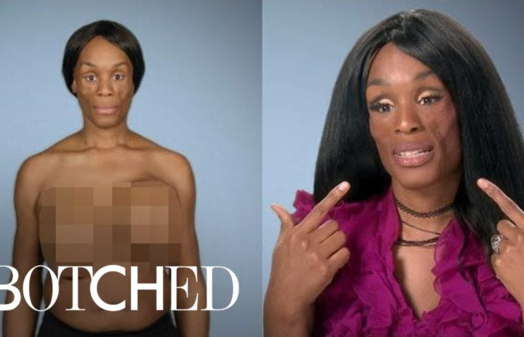 """Koffa Wants """"Botched"""" Doctors To Solve Her Medical Mystery 