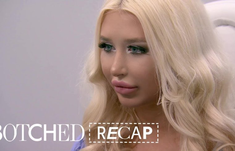 """Botched"" Recap: Season 5, Episode 11 