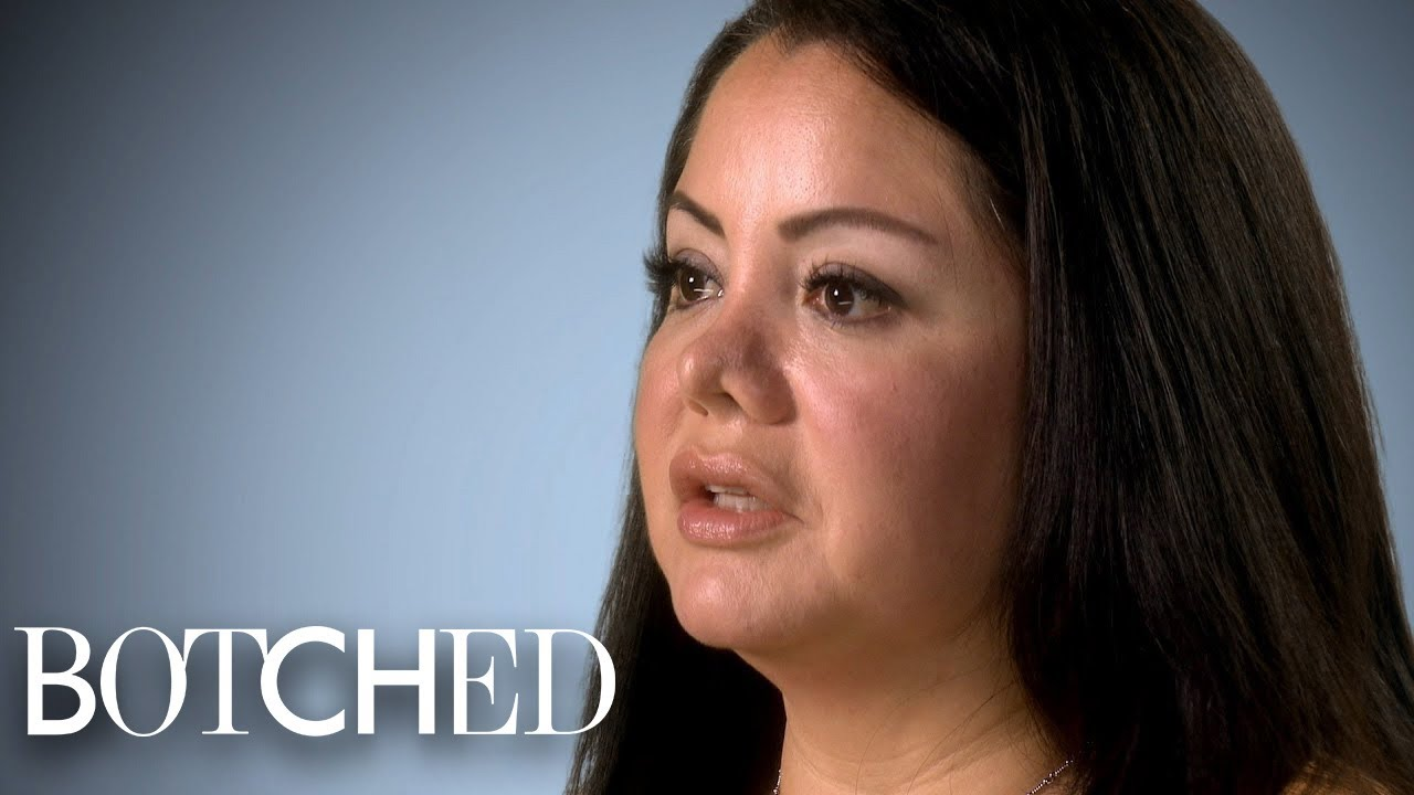 Mariela Went in for Liposuction But Got a New Nose Instead | Botched | E! 4