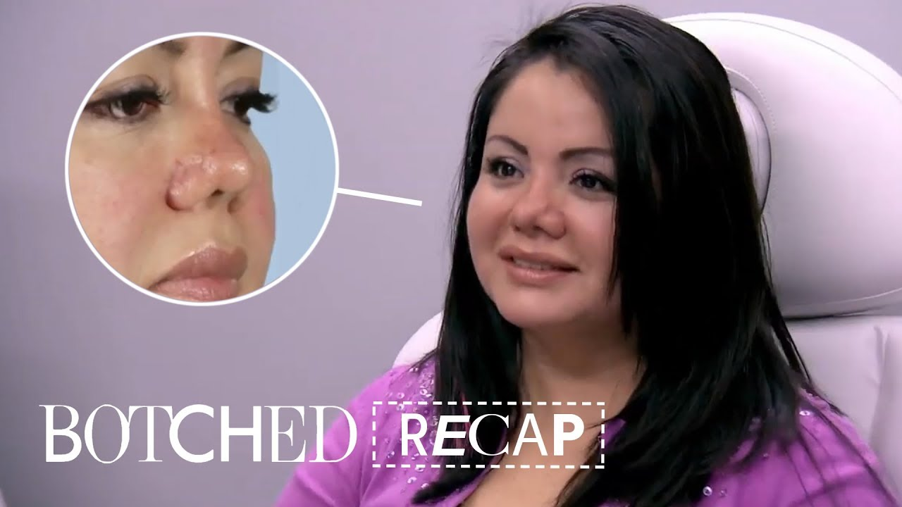 """Botched"" Recap: Season 5, Episode 10 