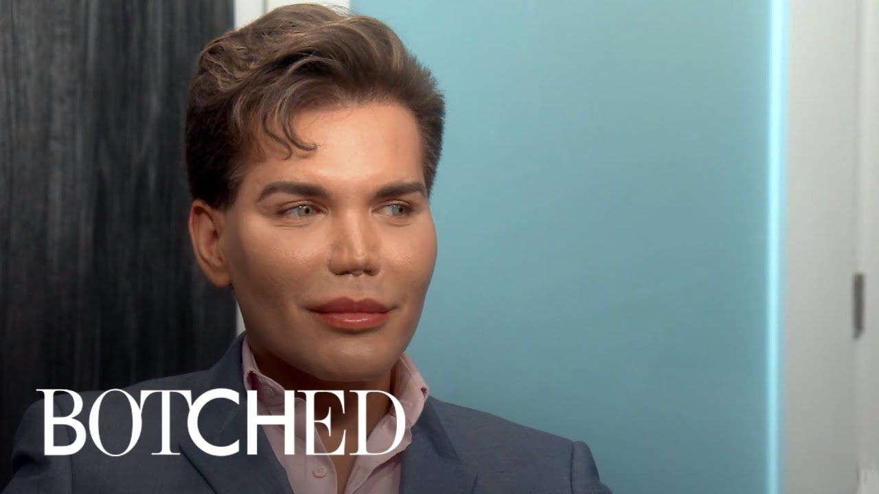 Albert Reveals His Surgical Nightmare in Mexico | Botched | E! 2