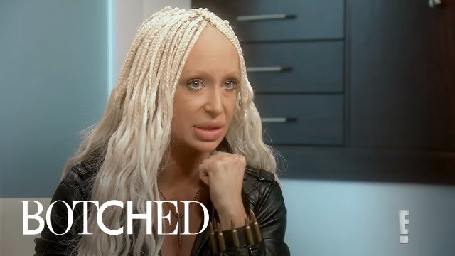 Did Woman Get Sheep's Fat Injected in Lips?! | Botched | E! 3