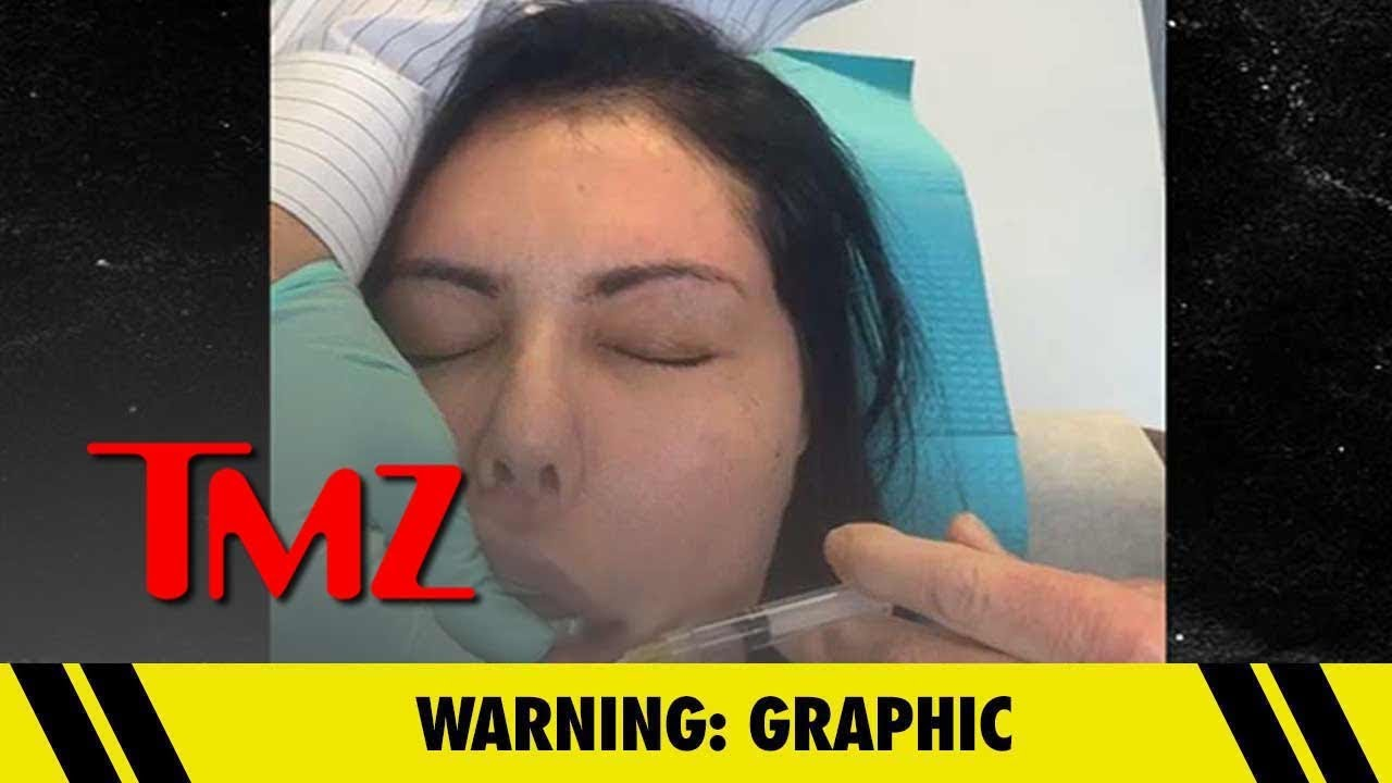 Liziane Gutierrez's Plastic Surgery Nightmare is Getting Worse | TMZ 4
