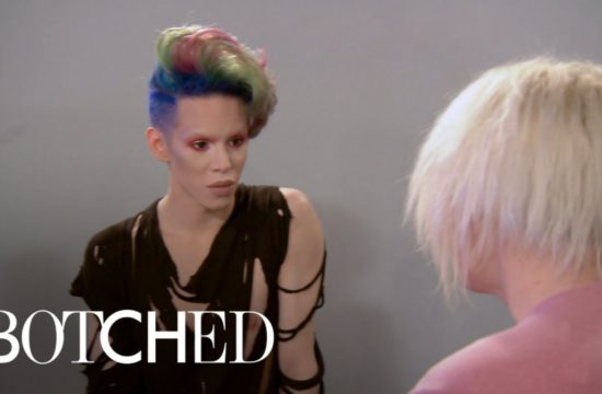 """Botched"" Patients Bond Over Nose Issues 