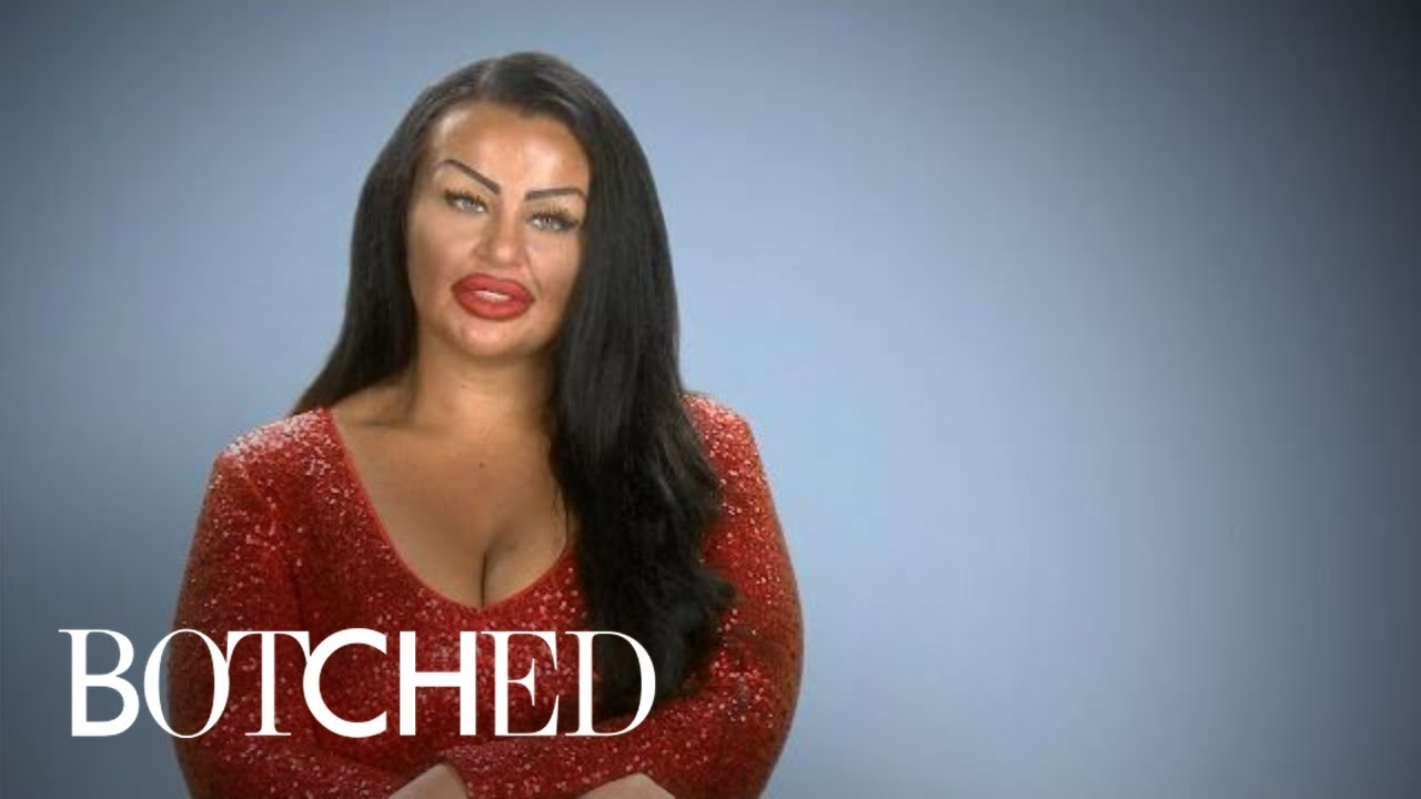 """Botched"" Patient Wants Basketball Boobs With Hearts on Front 