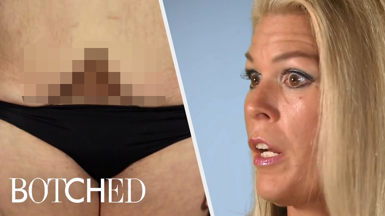 Tummy Tuck Surgeries Gone Wrong | Botched | E! 5