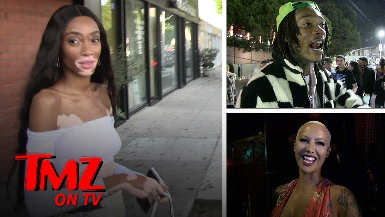 Winnie Harlow Loves Amber Rose Even Though She's Dating Wiz | TMZ TV 5