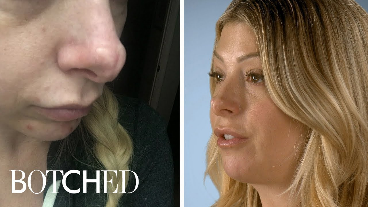 Jennifer Wants Her Jurassic Schnoz Fixed | Botched | E! 2
