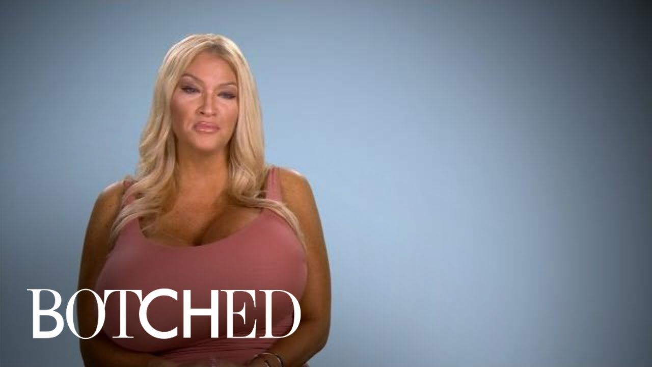 Allegra Explains Her Growing Giant Breasts | Botched | E! 4
