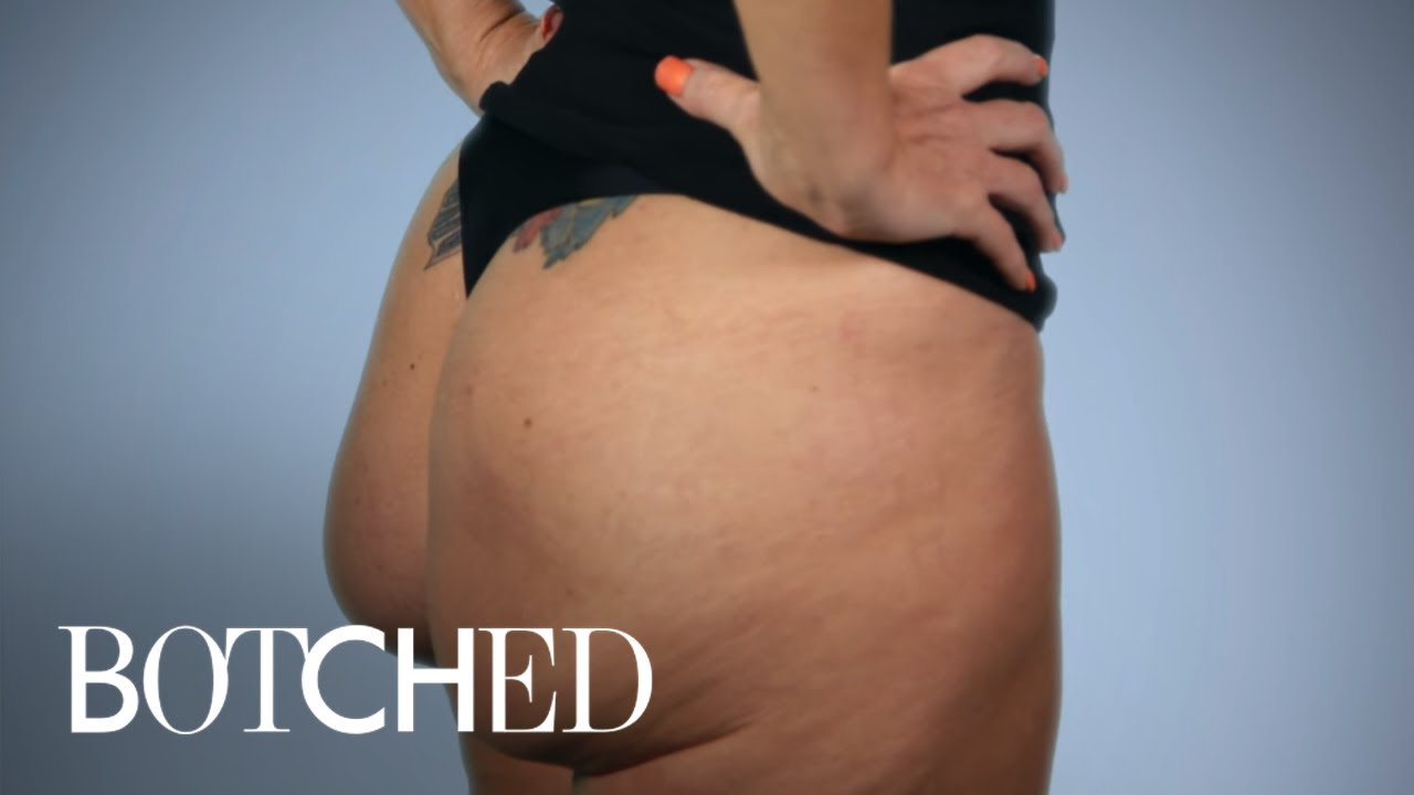 Butt Implants Gone Completely Wrong | Botched | E! 5
