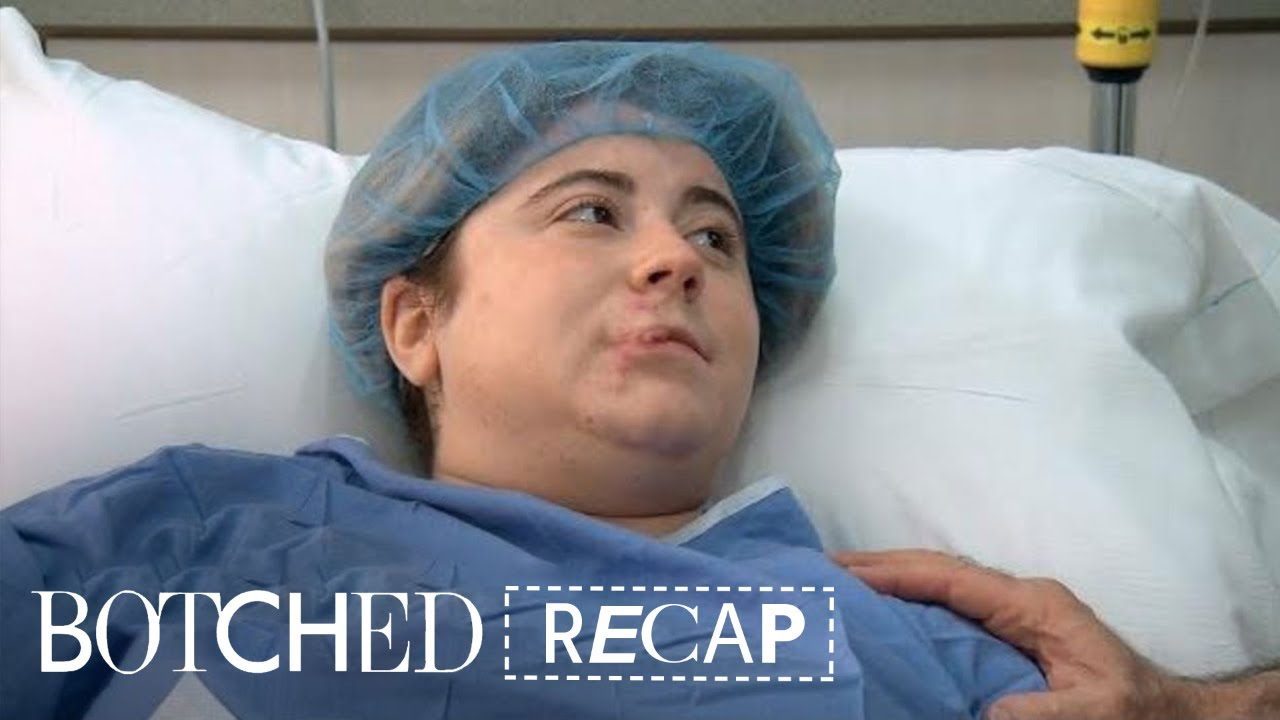 """Botched"" Recap: Season 4, Episode 18 