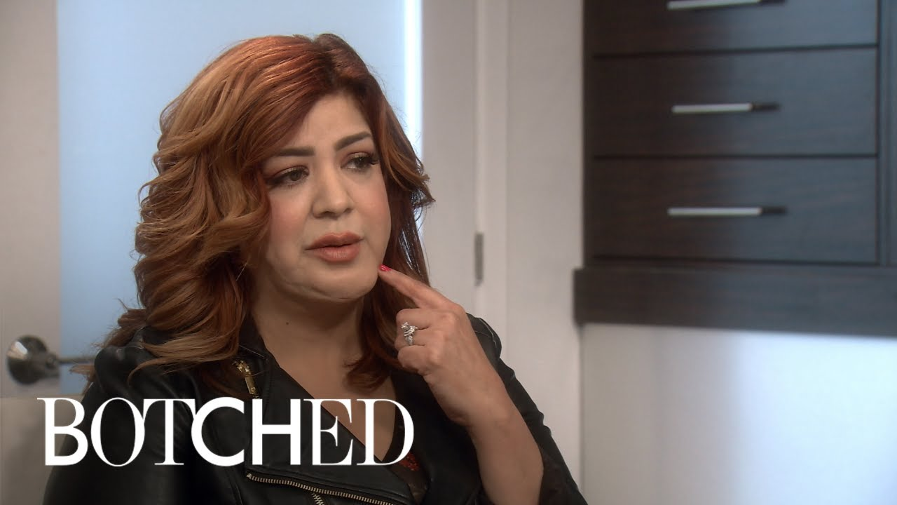 Michelle Got Her Face Worked on By a Drug Addict | Botched | E! 1