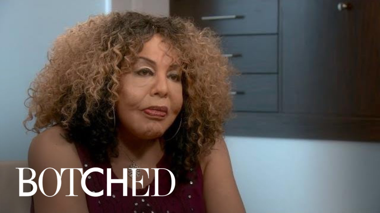 """Botched"" Patient Rajee Returns for a 3rd Time 