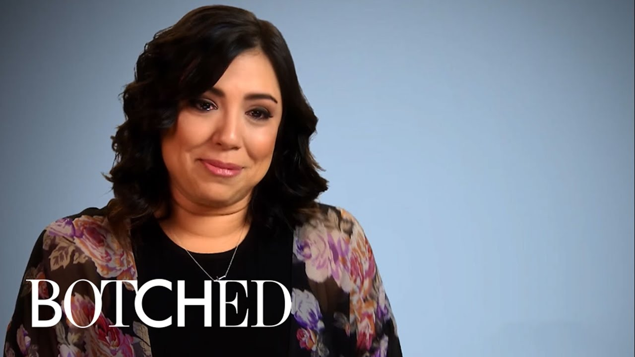 """Top 5 Greatest """"Botched"""" Transformations 