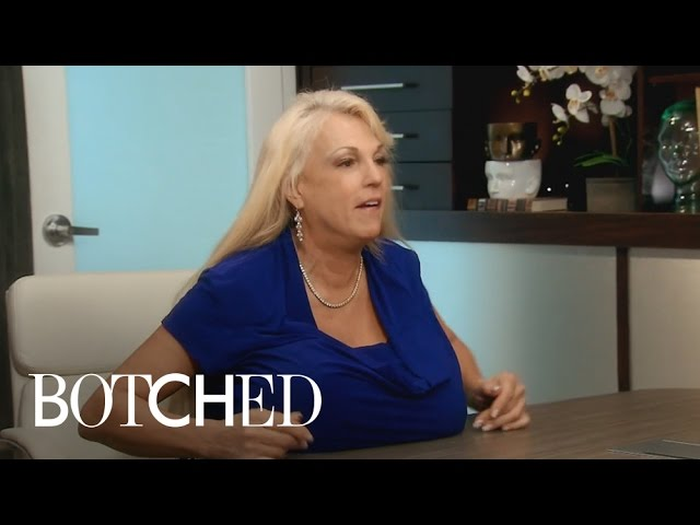 Dr. Terry Dubrow's Hand Gets Crushed By Giant Breast | Botched | E! 4
