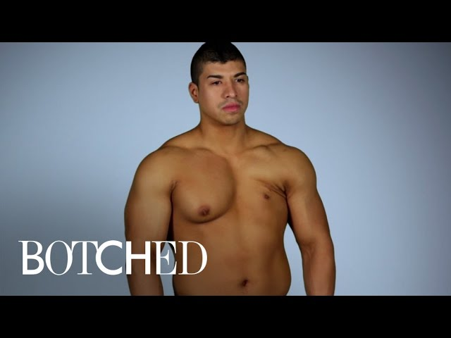 Albert Reveals His Surgical Nightmare in Mexico | Botched | E! 5