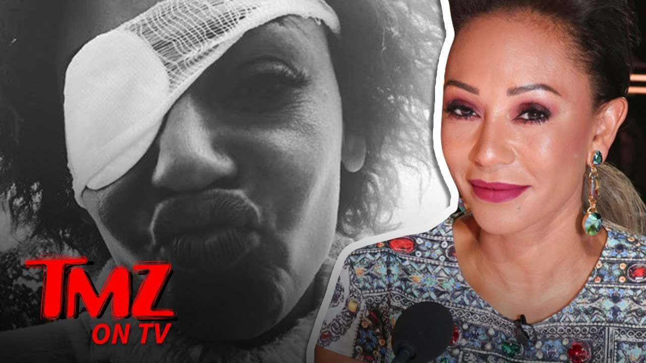 Mel B Sets Story Straight About Eye Problems | TMZ TV 4